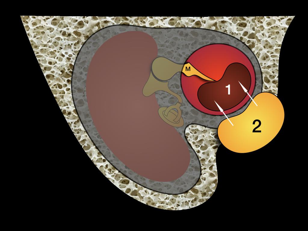 Myringoplastyka