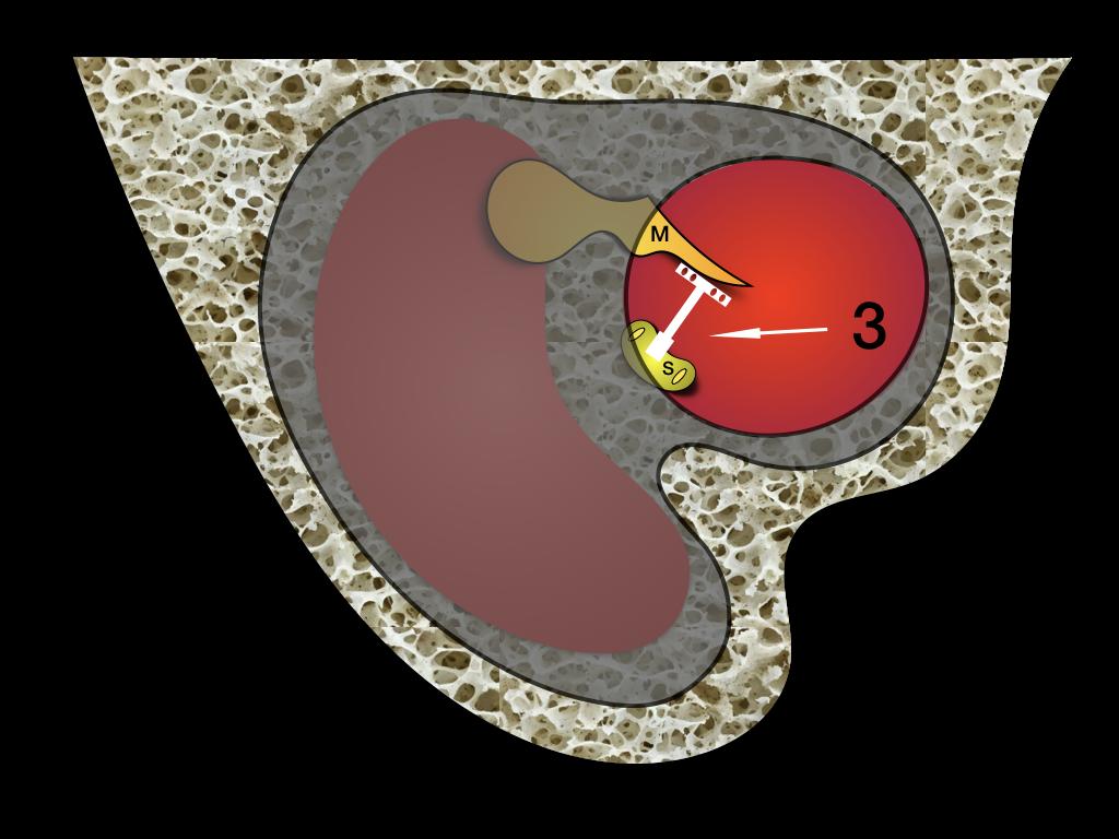Ossikuloplastyka
